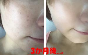 ドモホルンリンクル使用後の肌