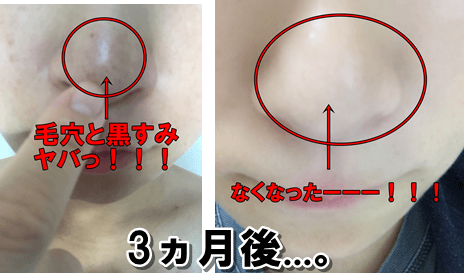 ドモホルンリンクル使用後の毛穴