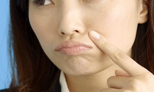 ドモホルンリンクルで毛穴は消えるの?その口コミを調べてみた。